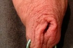Free porn pics of Male Chastity Foreskin Piercing 1 of 4 pics